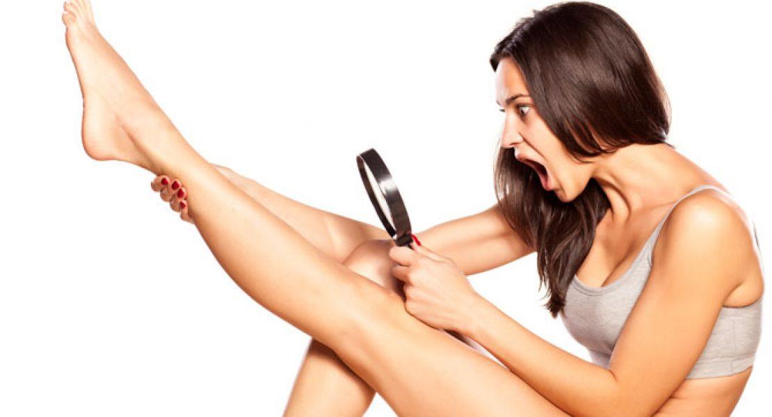 Eingewachsene Haare  vermeiden und entfernen