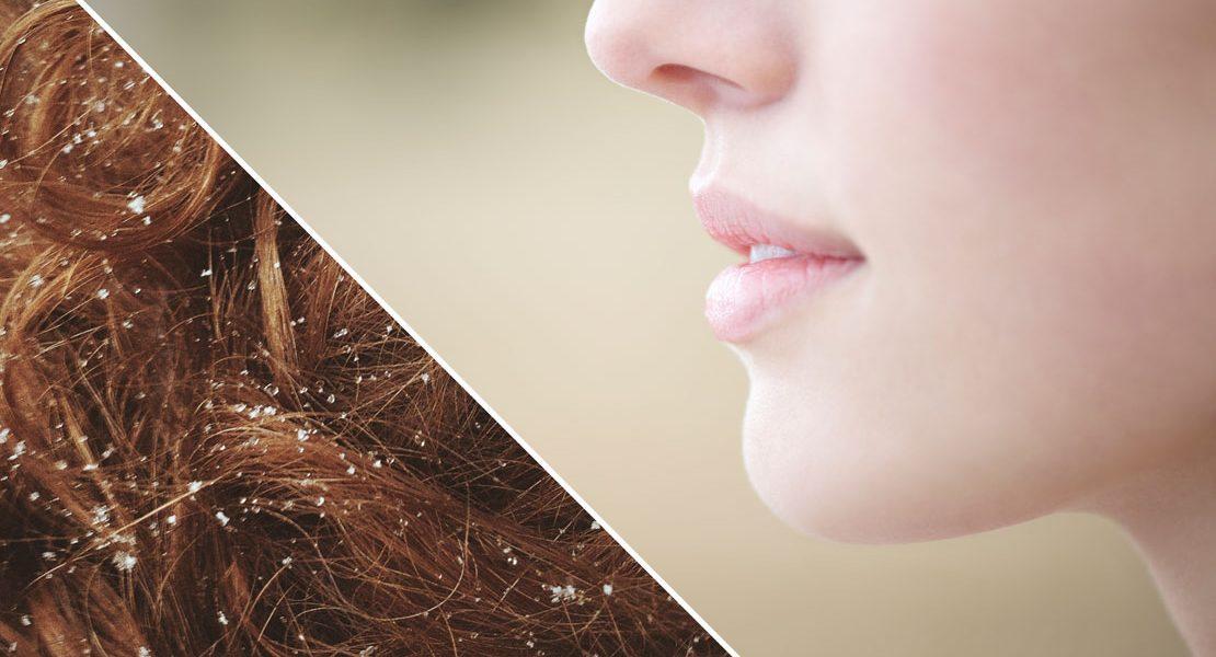 Kälteschutz  für Haut & Haar