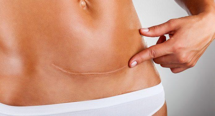 Narben entfernen: Diese Methoden wirken effektiv