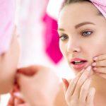 Was die Lage der Pickel im Gesicht über deine Gesundheit verrät