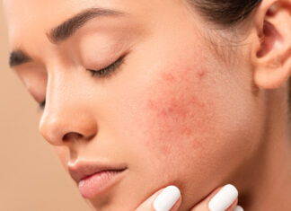 Pickelmale entfernen: Expertentipps gegen die dunklen Flecken