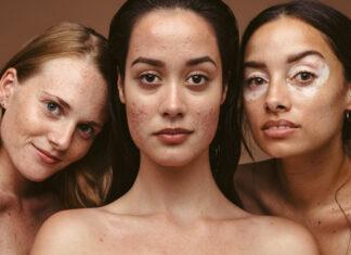 Skin Positivity
