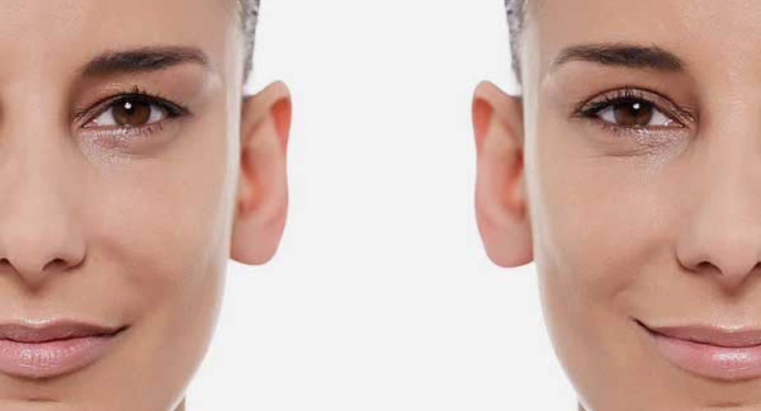 MAGICSTRIPES: Straffere Augenkonturen im Handumdrehen